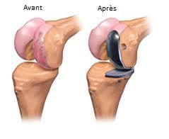 Prothese genou avant après