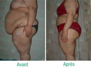 chirugie-ventre-avant-aprés3