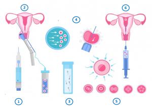 fécondation-in-vitro