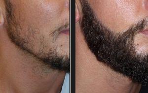 Greffe de barbe Tunisie