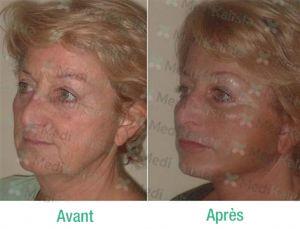 lifting faciale avant aprés 4