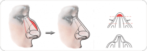 rhinoplastie-chirurgie du nez