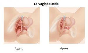 vaginoplastie-en-tunisie-avant-après