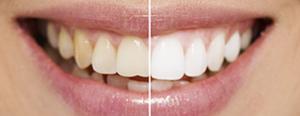 Teeth Whitening Tunisia