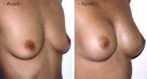 prothese mammaire avant apres tunisie