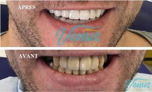 chirurgie dentaire homme tunisie